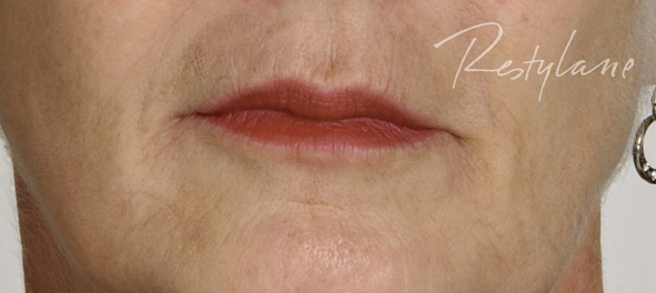 lips after treatment